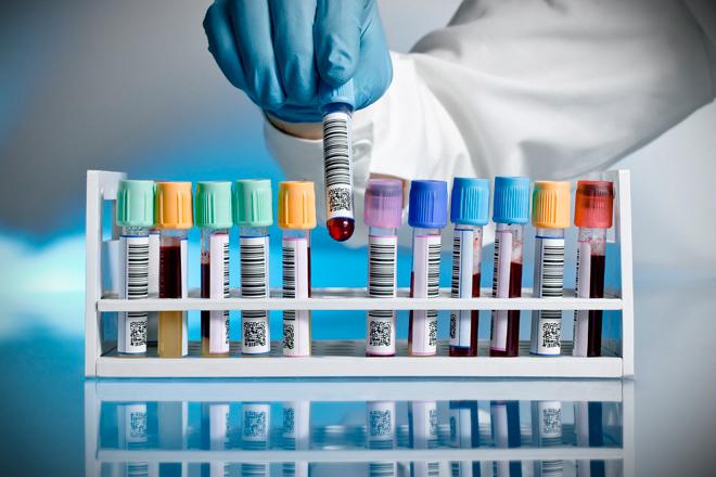 Biometric Screening Processing Blood Draws